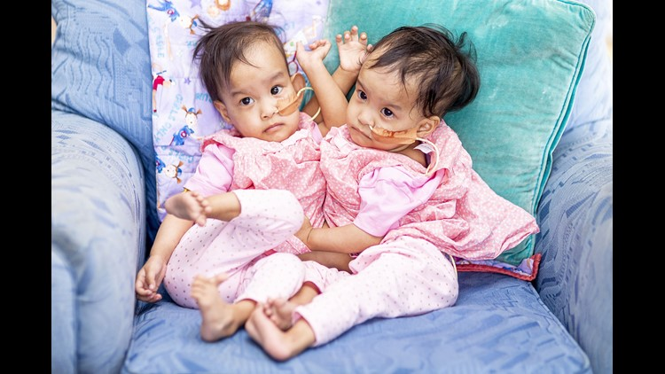 Epa Australia Conjoined Twins Hum People Aus Vi