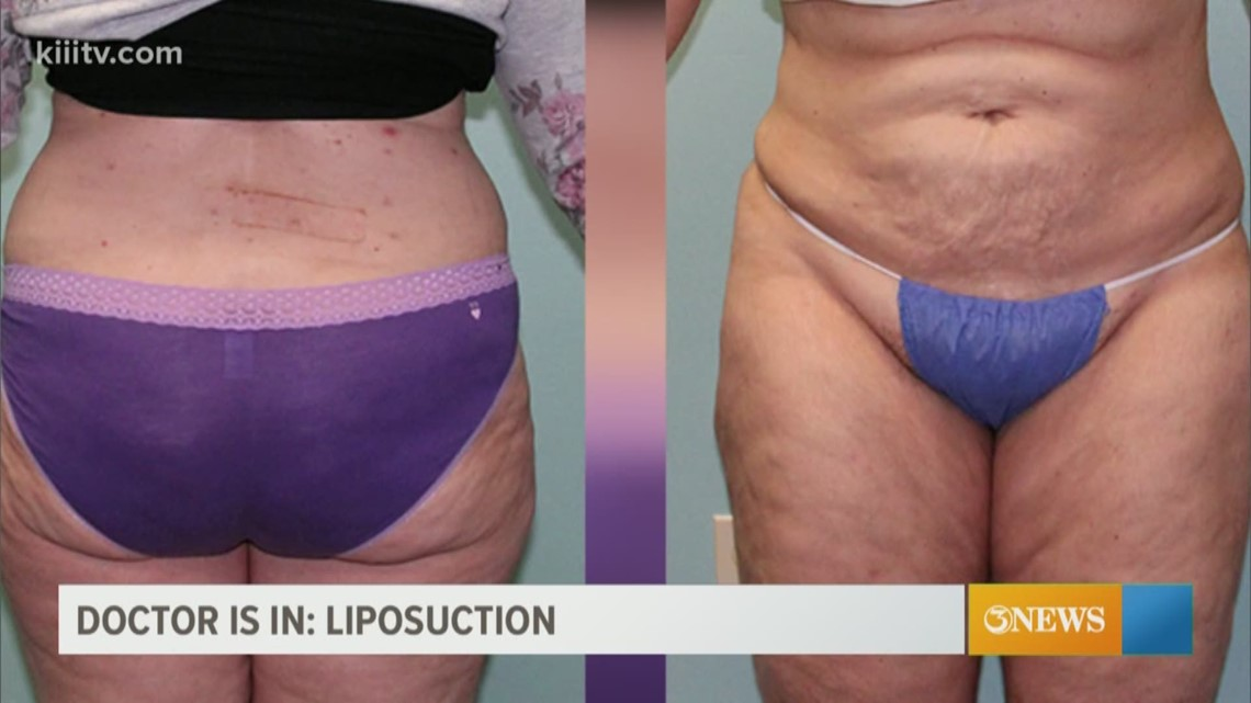 The Dr Is In Who Should Get Liposuction Kiiitv Com