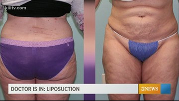 The Dr. is In - who should get liposuction?