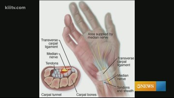 The Dr. Is In - Carpal Tunnel Syndrome