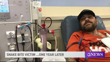 One year later: Corpus Christi man still recovering after being bitten by severed rattlesnake head